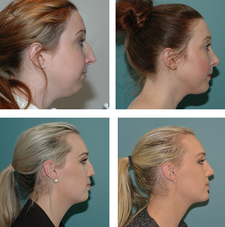 Before And After Rhinoplasty By Dr Gillett