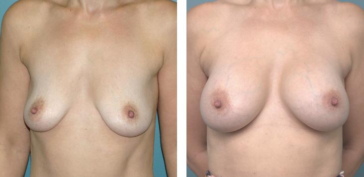 Breast_aug_2