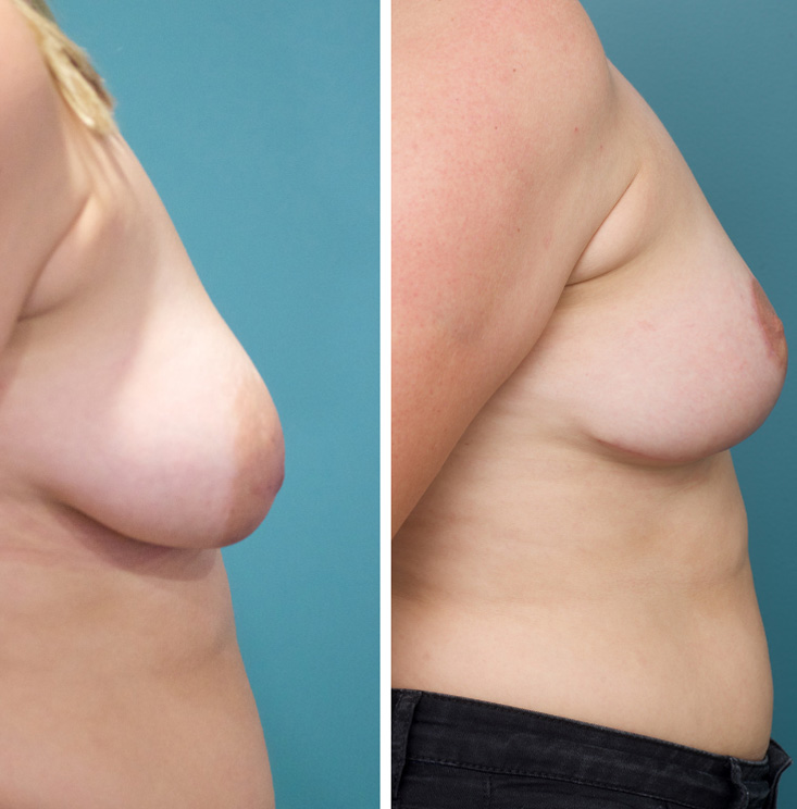 Before and After Breast Lift By Dr Gillett 
