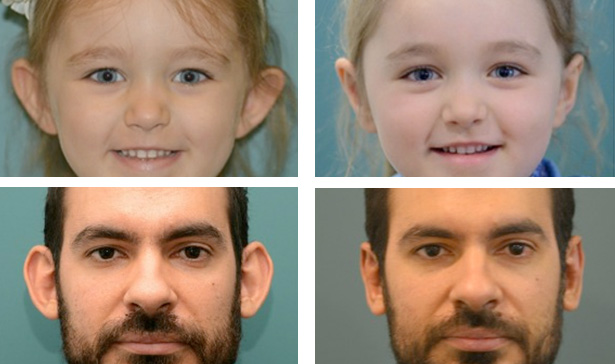 Ear Surgery before after - Ethicos Institute