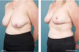 Breast before after - Ethicos Institute