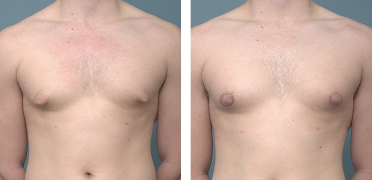 Male Breast before after - Ethicos Institute