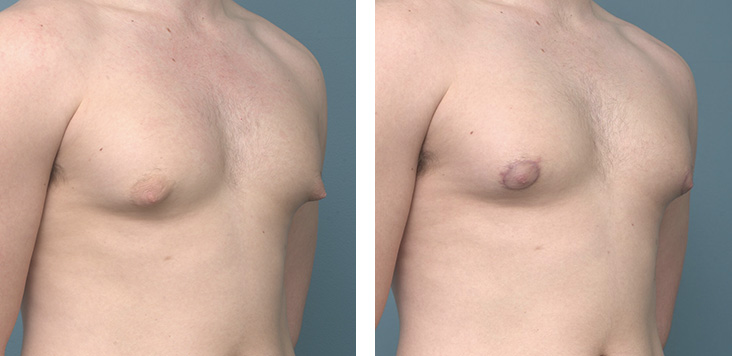 Gynaecomastia Before After - Ethicos Institute