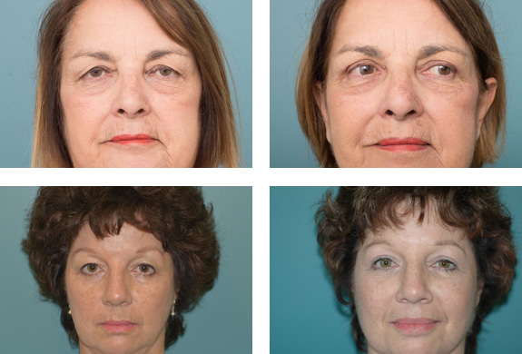 Eyelid Surgery - Ethicos Institute Cottesloe