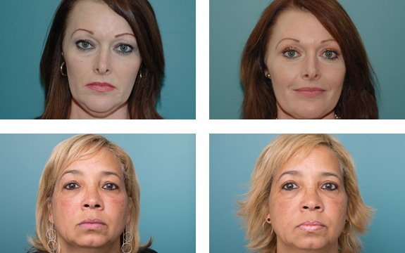 Blepharoplasty before after - Ethicos Institute