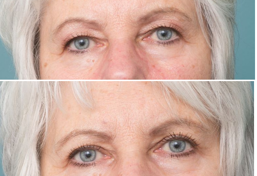 Blepharoplasty perth