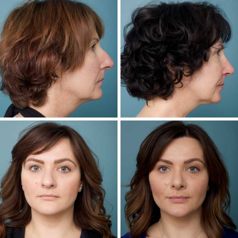 Rhinoplasty - Ethicos Institute