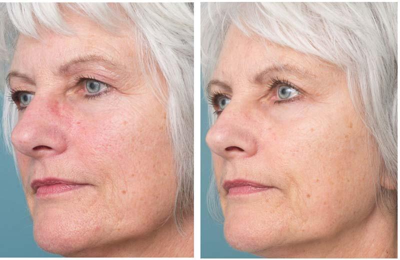 Eyelid Surgery - Ethicos Institute