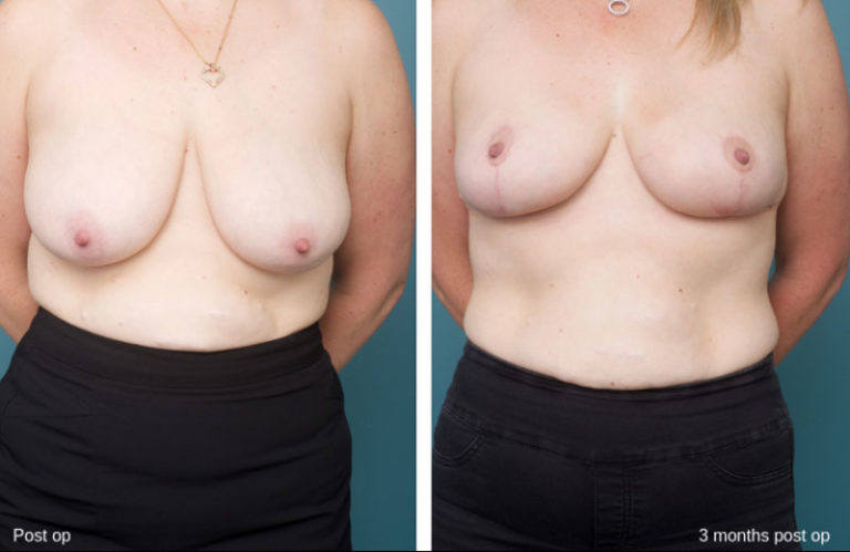 Breast Reduction - Ethicos Institute