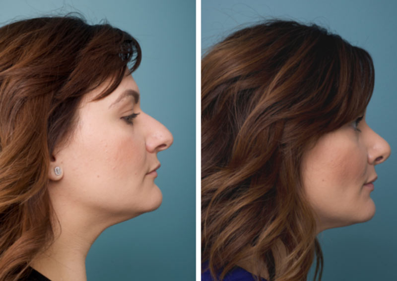 Nose Surgery - Ethicos Institute