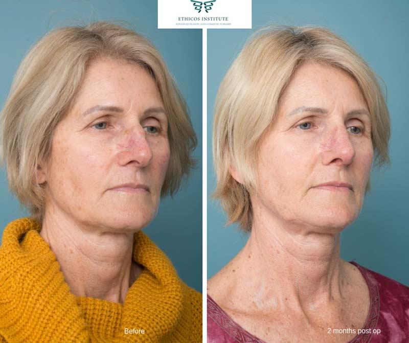 Nose Surgery - Ethicos Institute