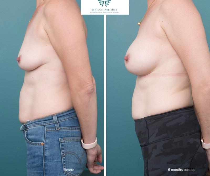 Breast Augmentation - Ethicos Institute