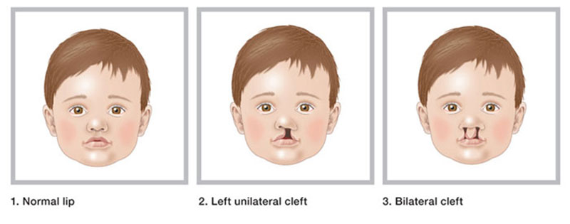 Cleft Lip and Palate - Ethicos Institute
