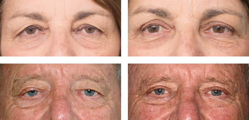 Eyelid Surgery - Ethicos Institute