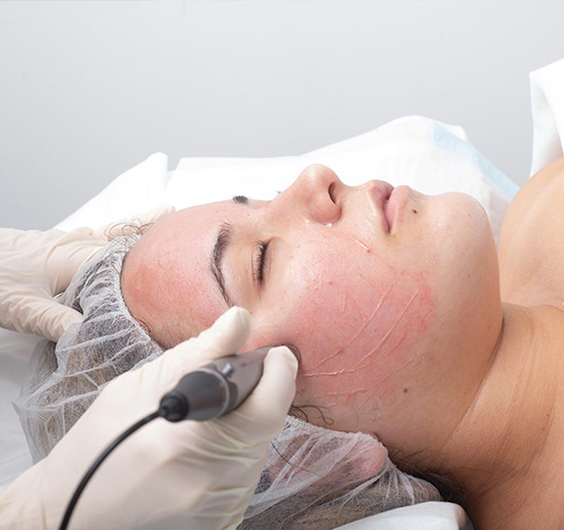 Medical Skin Needling - Ethicos Institute